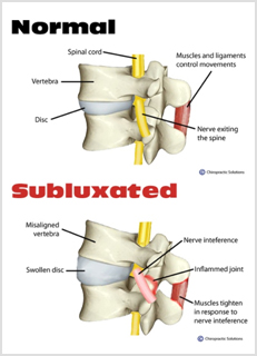Spinal Subluxation